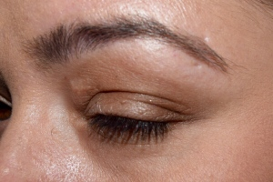 Left Eye Before Instant Eye Lift