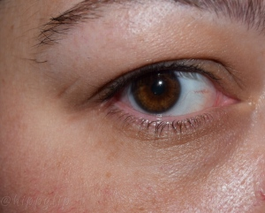 Right Eye Before Instant Eye Lift